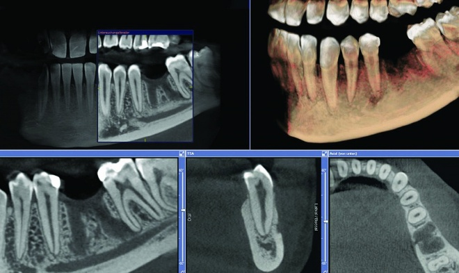 Снимок челюсти на КТ