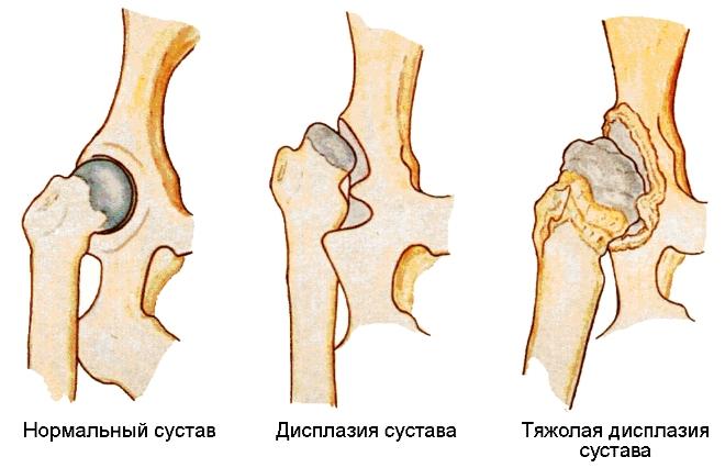Что такое дисплазия тазобедренного сустава