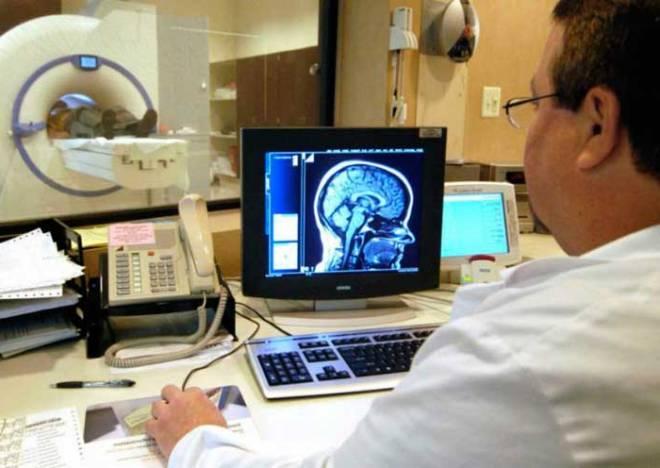 МРТ головного мозга при инсульте