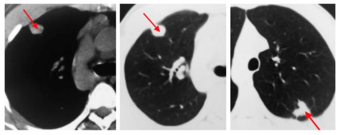 Туберкуломы на снимке КТ