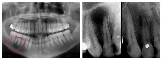 Киста на корне зуба: фото, симптомы и лечение