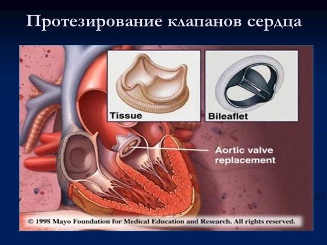 Искусственный аортальный клапан