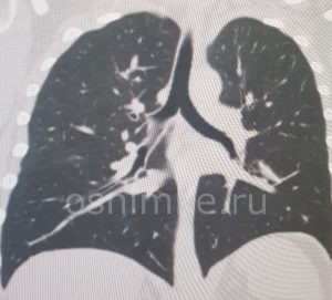 КТ-исследование легких: клинические показания и возможности визуализации
