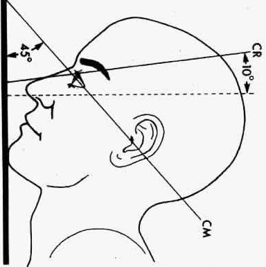 проекция Уотерса