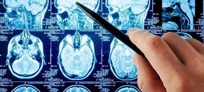 Применение МРТ при диагностике патологий турецкого седла