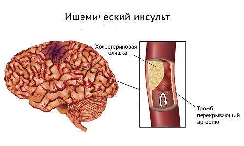 Ишемический инсульт головного мозга: симптомы, лечение и восстановление