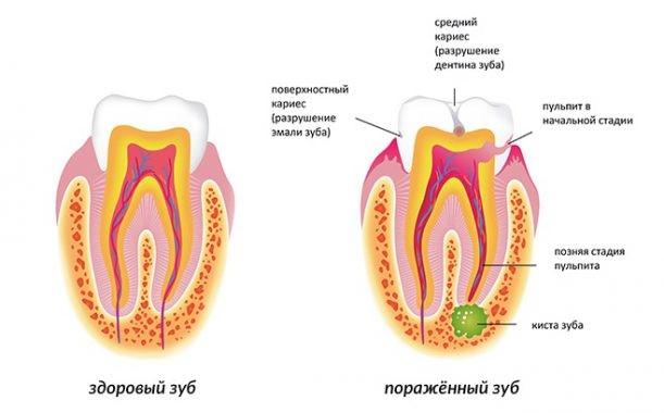 Паталогии зуба