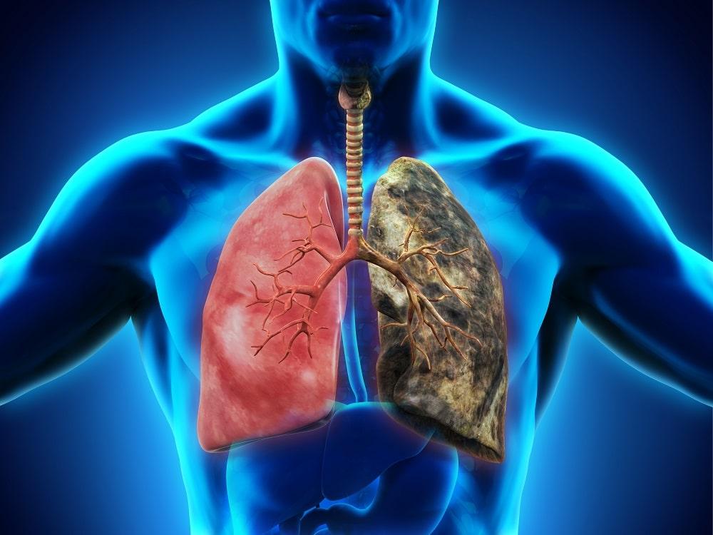 МРТ лёгких: альтернативные и инновационные методики