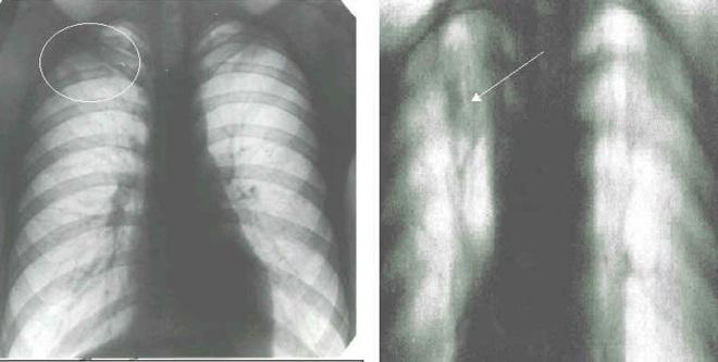 Туберкулез на рентгенограмме