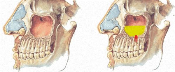 На фото видна здоровая пазуха и пазуха при одонтогенном синусите. Корень зуба, который воспалился и соприкасается с пазухой, вызвал в ней воспаление.