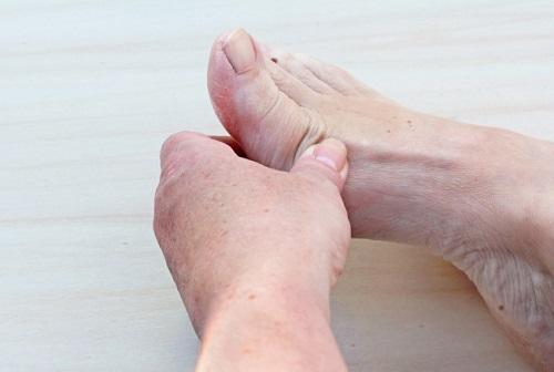 Артроз стопы: симптомы и лечение