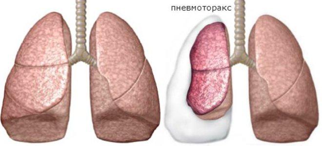 Признаки пневмоторакса