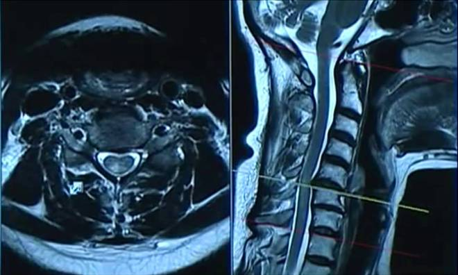 Снимок спинного мозга на МРТ