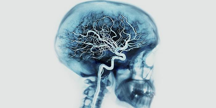 МР-ангиография сосудов головного мозга