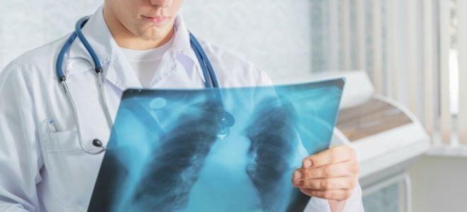 Показывает ли флюорография что человек курит
