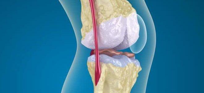 Как выявляют остеопороз на рентгене?