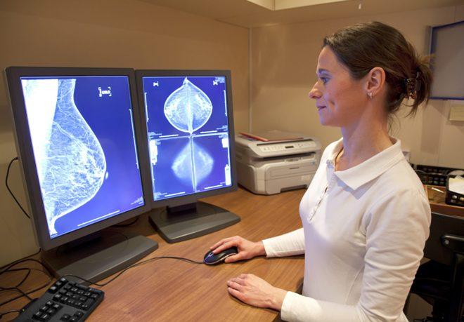 Результат цифровой маммографии