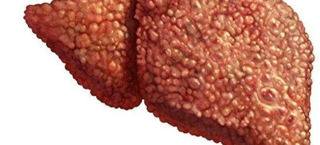 УЗИ печени: как проходит процедура и виден ли на мониторе цирроз