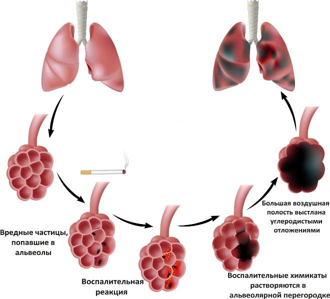 Как развивается эмфизема легких