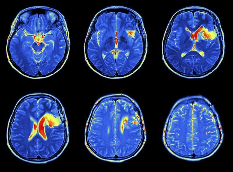 МРТ обследование что это: показания, что выявляет