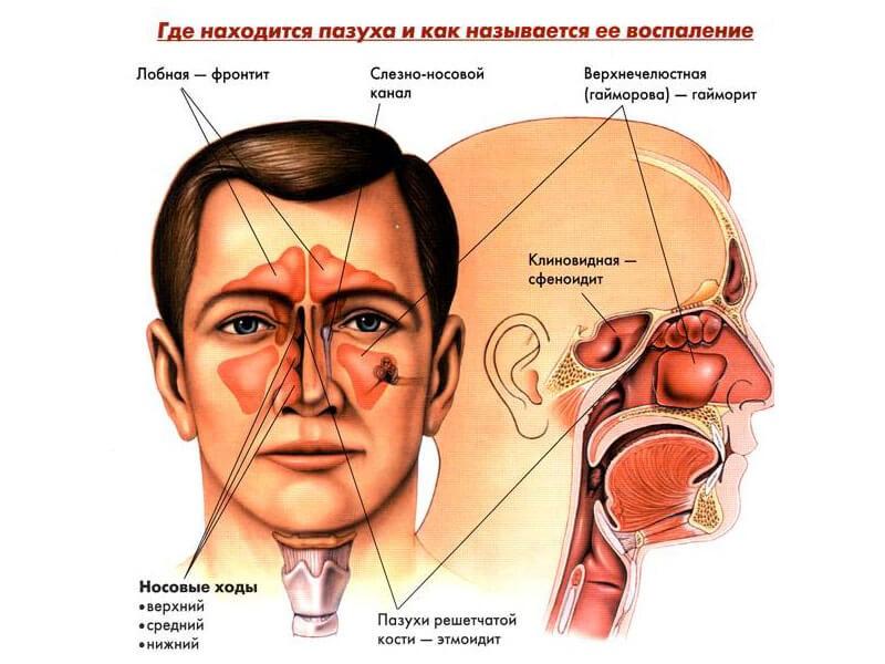 С учетом локализации различают фронтальный и верхнечелюстной синуситы, а также этмоидит и сфеноидит.