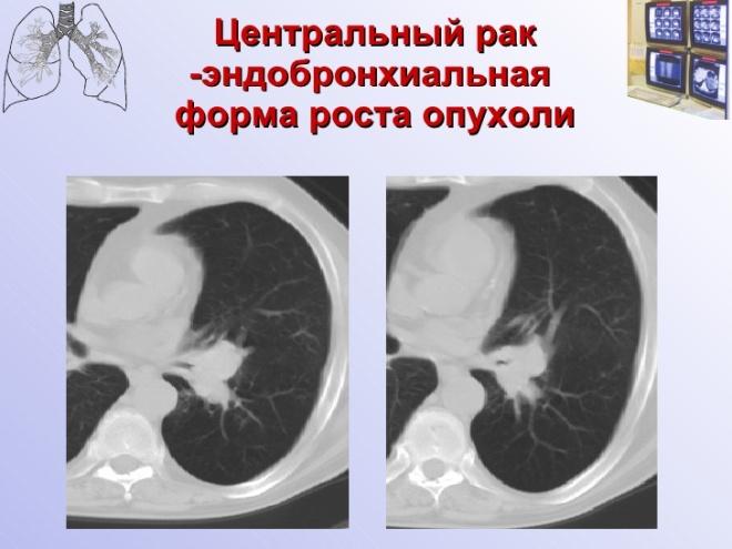 Снимок КТ с раком легкого