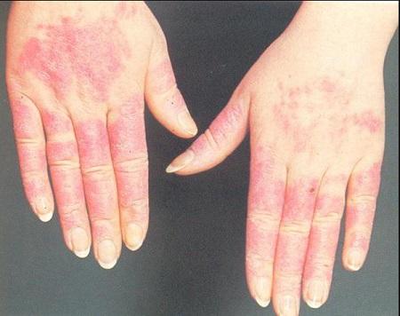 Аллергия на холод что делать? Причины и лечение