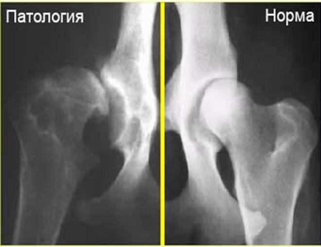 Дисплазия суставов на рентгеновском снимке