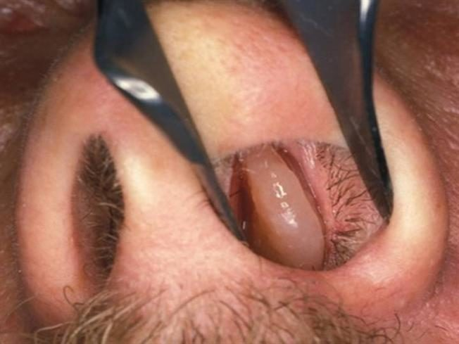 Киста в полости носа