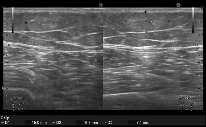 Снимок УЗИ мягких тканей