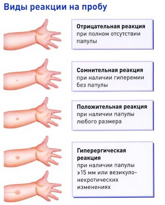 Флюорография: туберкулёз на рентгеновском снимке