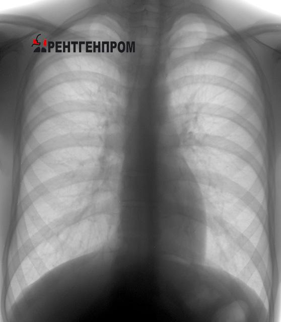 Здоровые лёгкие. Обзорный снимок грудной клетки