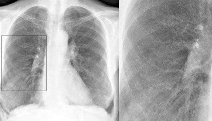 Бронхит на рентгеновском снимке