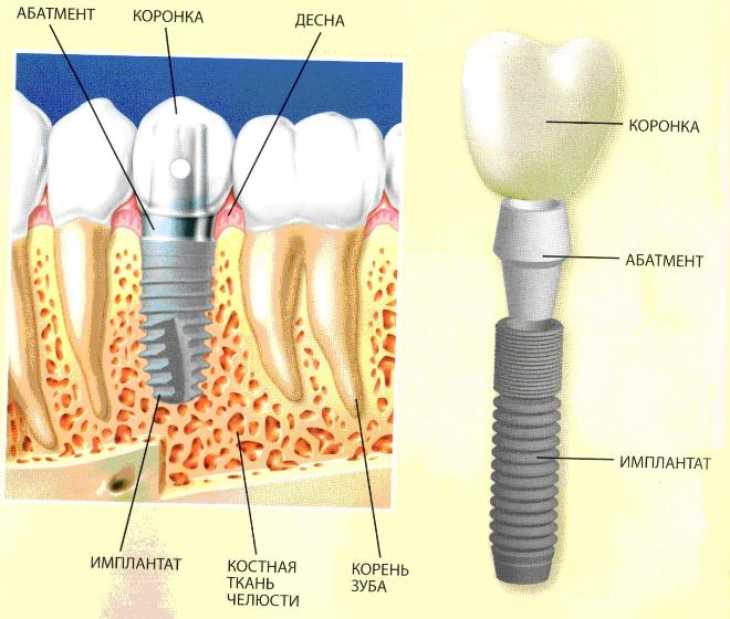 Порядок имплантации зубов