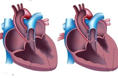 Увеличенное сердце на флюорографии: причины