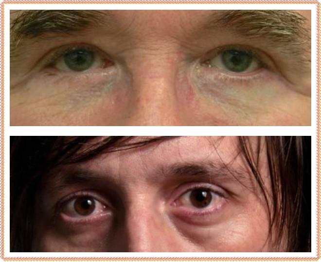 Синяки под глазами и простатит кишечная инфекция вызывает простатит