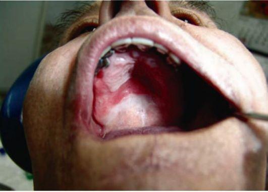 Грибковое поражение глотки пациента с зубными протезами