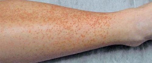 Васкулит: что это за заболевание? Симптомы, причины, профилактика и лечение