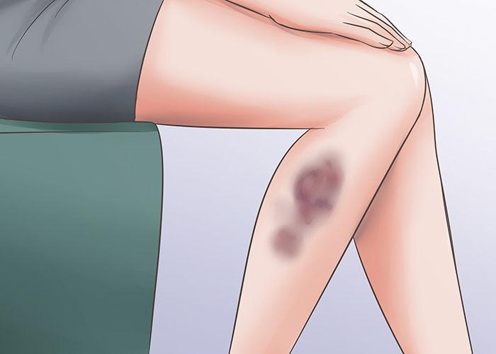 Как убрать синяк на ноге с помощью домашних средств