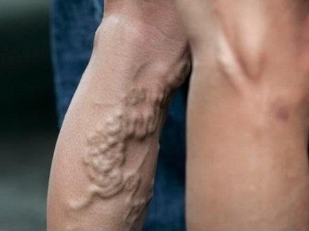 Варикоз на ногах: лечение препаратами и народными средствами на дому