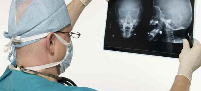 Особенности проведения рентгена головы