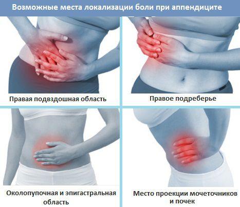 Признаки аппендицита у женщин: 9 главных симптомов
