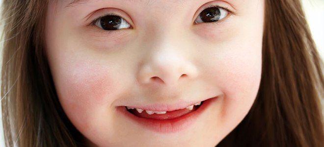 Синдром Дауна: выявление патологии с помощью скрининга