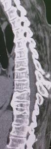 Деформирующий спондилёз 3 стадии, распространённый остеохондроз