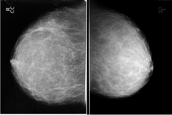 Маммографический снимок