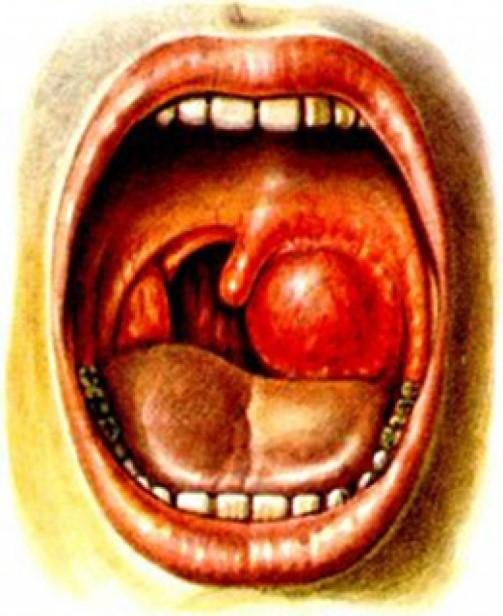 Паратонзиллярный абсцесс или флегмонозная ангина
