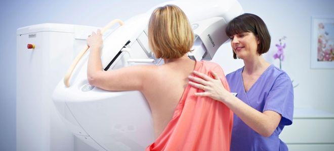 Необходима ли маммография при беременности?