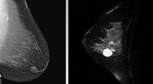МРТ молочной железы: сравнение методик с УЗИ, маммографией, КТ