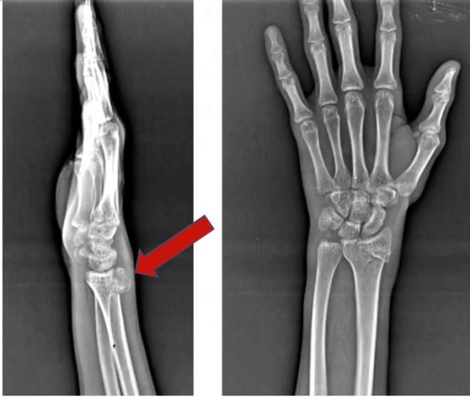 Перелом лучезапястного сустава на рентгенограмме