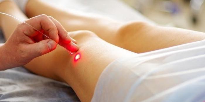 лечение сосудов ног лазером